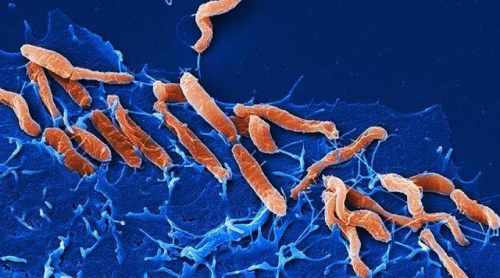 helicobacter pylory pod mikroskopom
