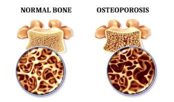 uvecan prikaz kosti kod osteoporoze