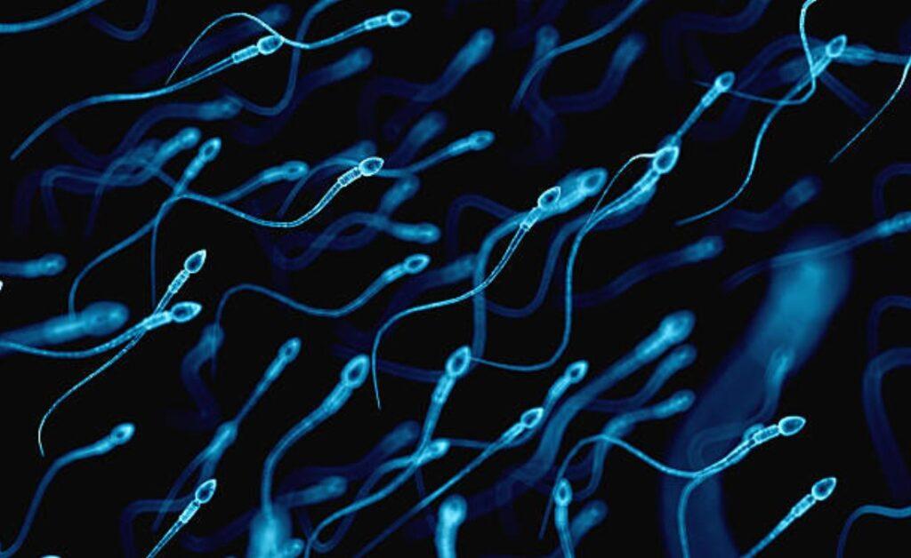 spermogram