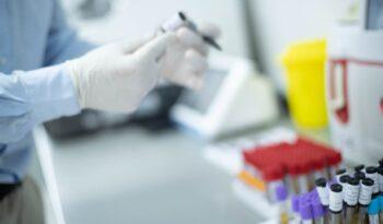 Analiza fecesa u Aqualab laboratoriji
