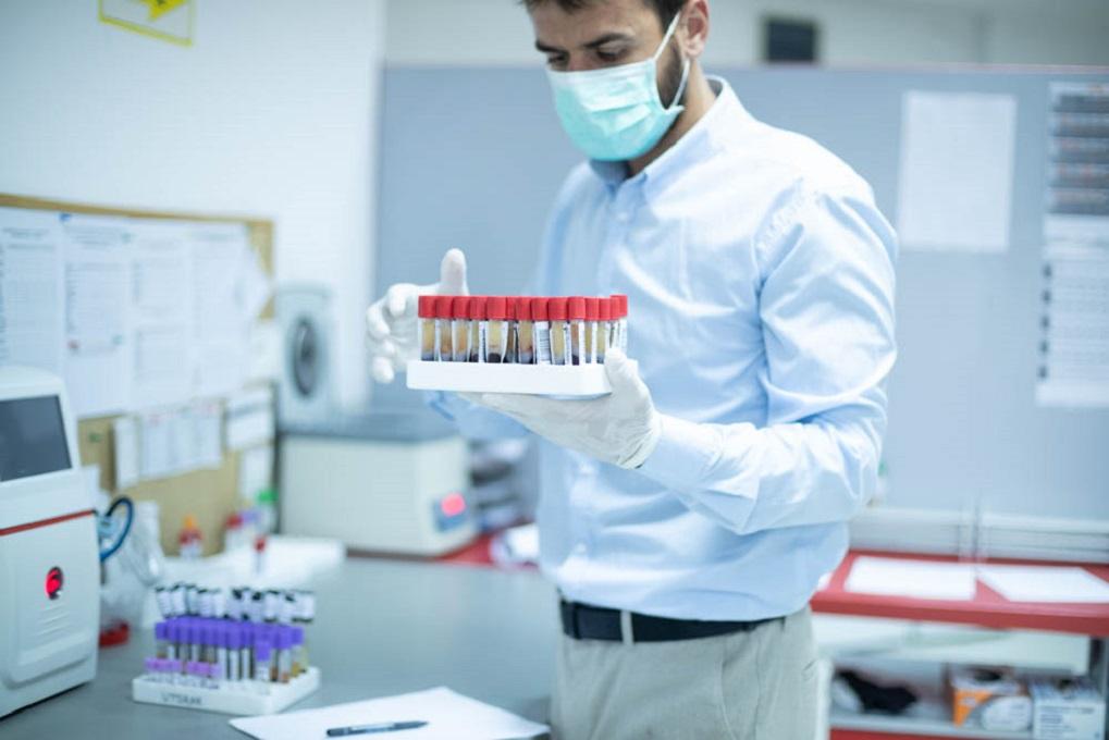 pcr dijagnostika na polno prenosive bolesti