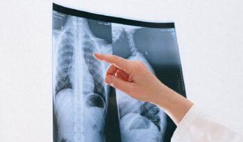 rendgen pluća