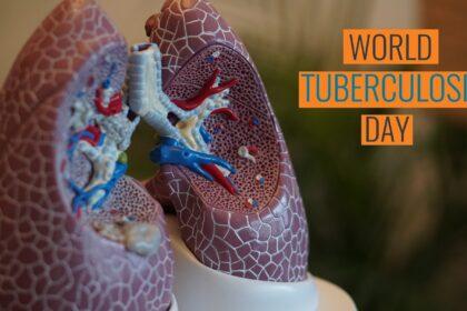 Svetski dan borbe protiv tuberkuloze