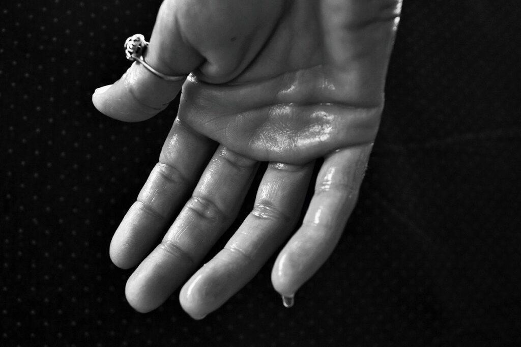 hiperhidroza na dlanovima